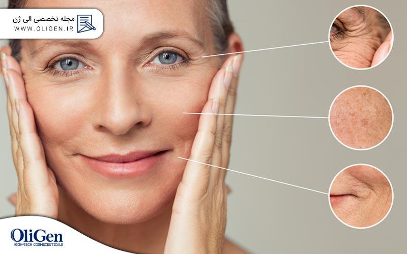 6 روش برای جلوگیری از پیری زودرس پوست