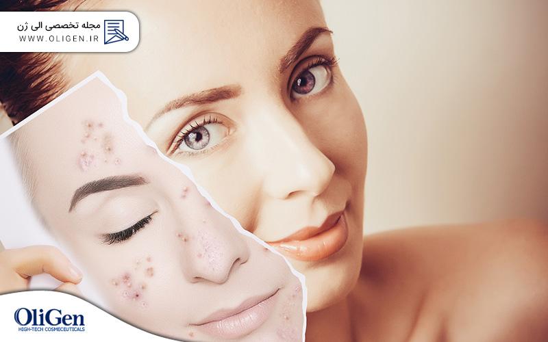 بهترین روش مراقبت از پوست خشک (بخش دوم)